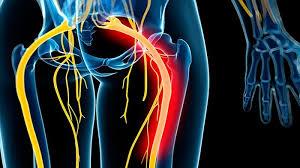 درمان عصب سیاتیک پای چپ